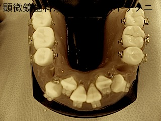 何度も何度も繰り返し練習するということ 東京職人歯医者_e0004468_1283444.jpg
