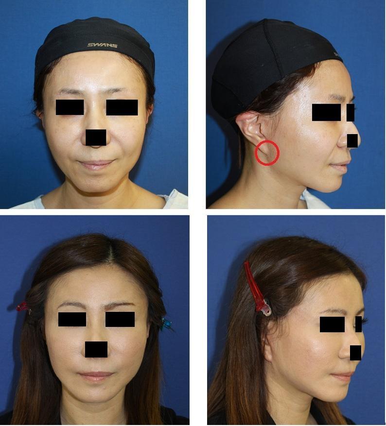 extended SMAS facelift (エクステンディド スマスリフト), 他院術後リフト耳修正_d0092965_23344621.jpg