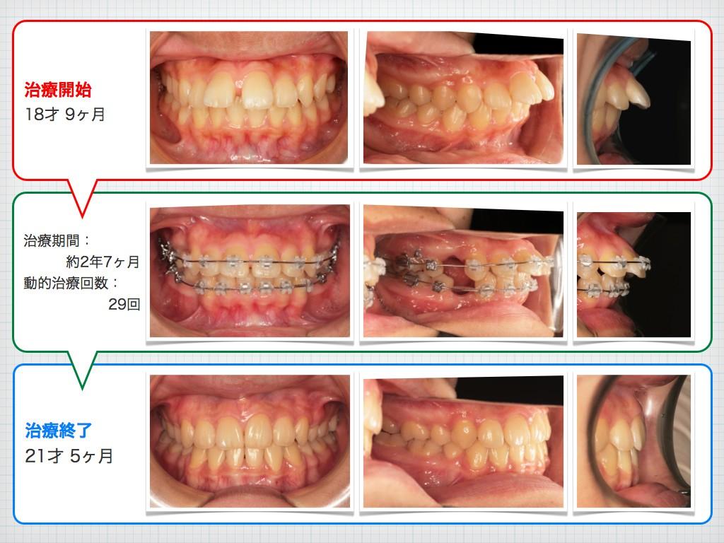 治療例:N・Tさん 18才女性の高度な出っ歯の治療例_e0025661_9102087.jpg