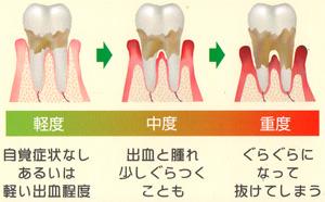 歯周病について_b0226176_10302789.jpg