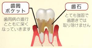 歯周病_b0226176_15151189.jpg