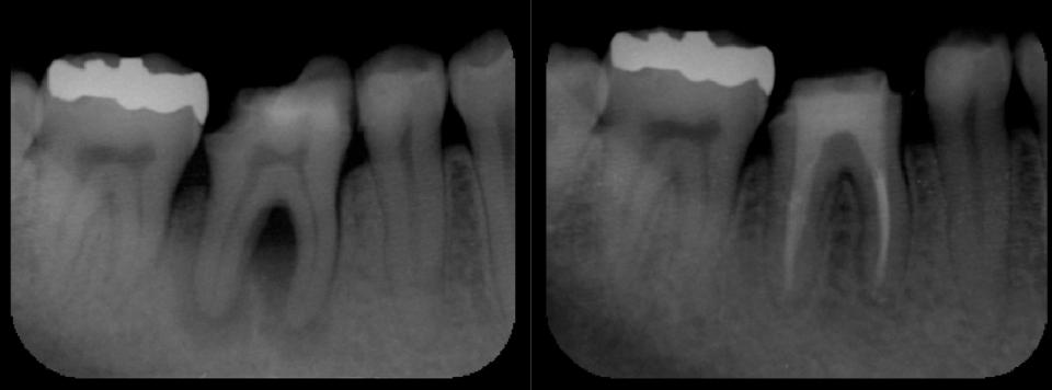 抜かずに過剰品質で一本の歯を守る。 東京顕微鏡歯科治療総合診療_e0004468_75561.png