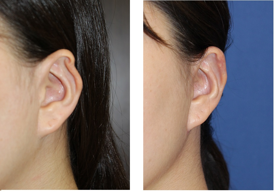 他院耳介軟骨採取後耳変形に対する修正術_d0092965_1455846.jpg