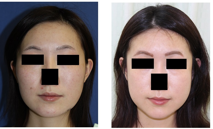 頬骨再構築術後約4か月_d0092965_21225149.jpg