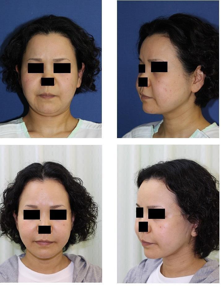 顎下脂肪吸引、ロアーリフト 術後三カ月_d0092965_22222282.jpg