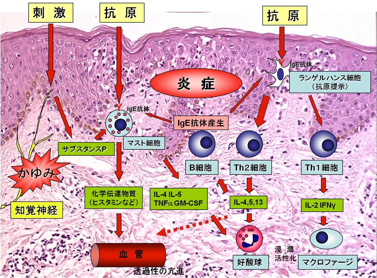 2013年8月教室 『さらに進化する乾癬治療、そしてアトピー性皮膚炎への応用』_c0219616_10554346.jpg