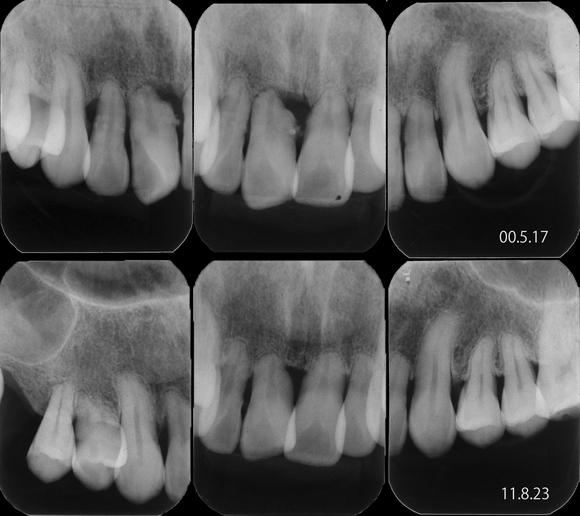 その後の重度歯周病経過_f0154626_16334517.jpg
