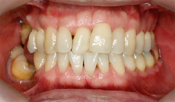 その後の重度歯周病経過_f0154626_1648494.jpg