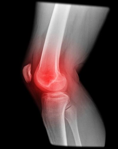 3年前からの膝の痛みが3か月で!  ~変形性膝関節症の女性~  ○ 体のゆがみ を科学する整骨院○_a0070928_2129586.jpg