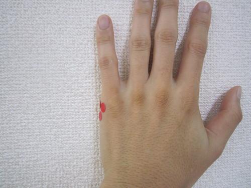 股関節痛には手のツボにお灸! _a0302226_1445537.jpg
