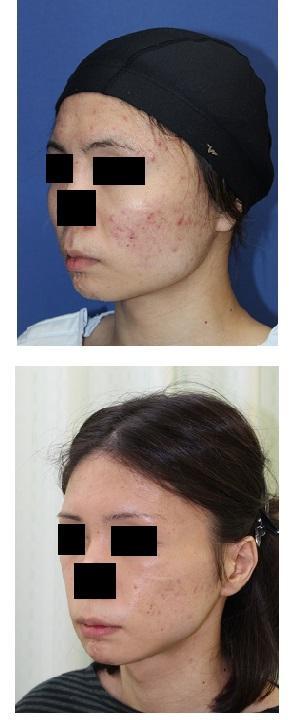 スティック骨切術、外板切除術、頬骨前方削り、アーチリダクション_d0092965_324581.jpg