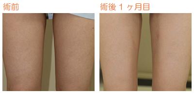 脂肪吸引(大腿内側) 術後1ヶ月目_c0193771_823872.jpg