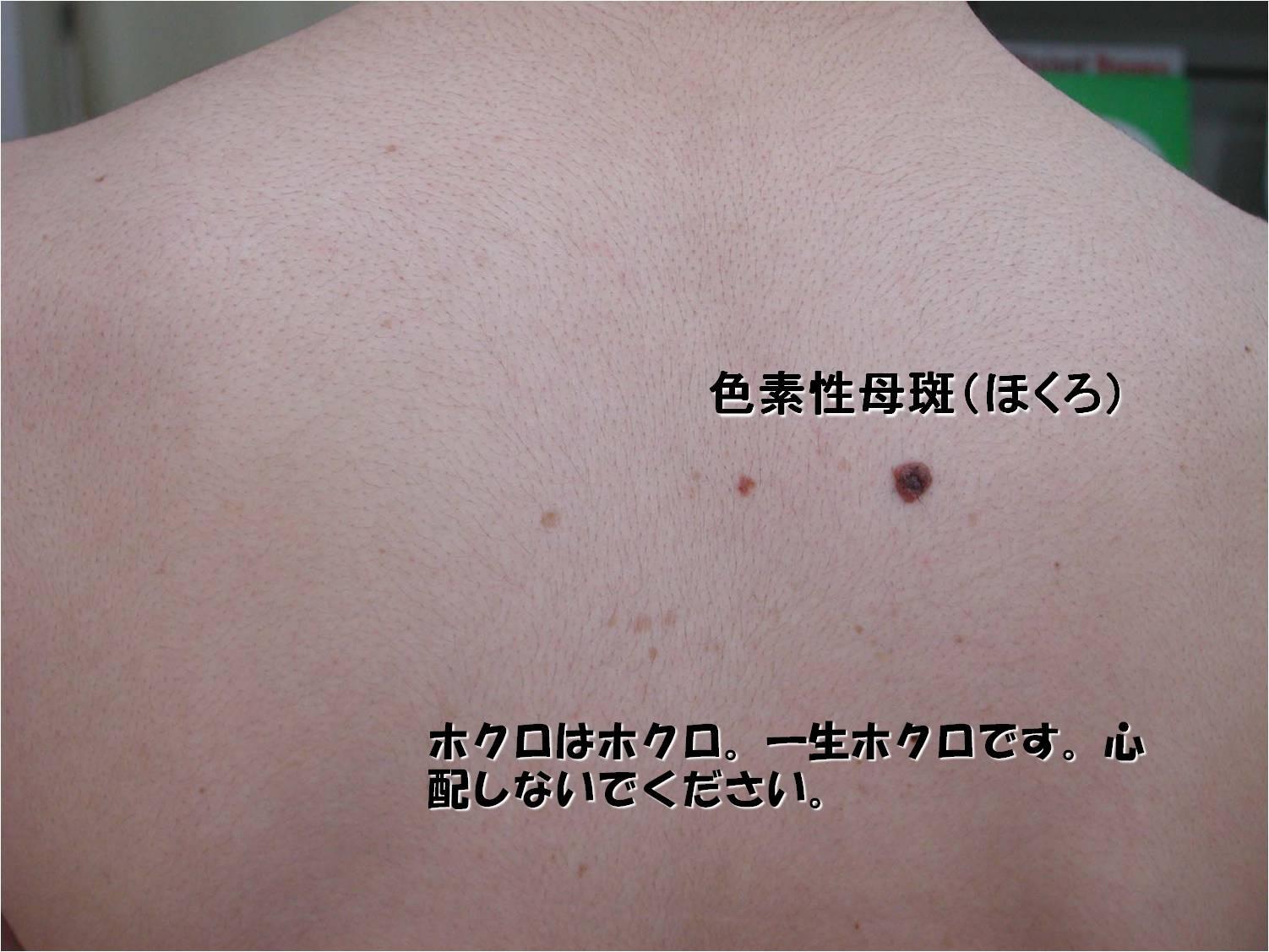 2013年10月26日教室 『皮膚の腫瘍 -放っておいて良いの?皮膚ガンなの?』_c0219616_19563124.jpg