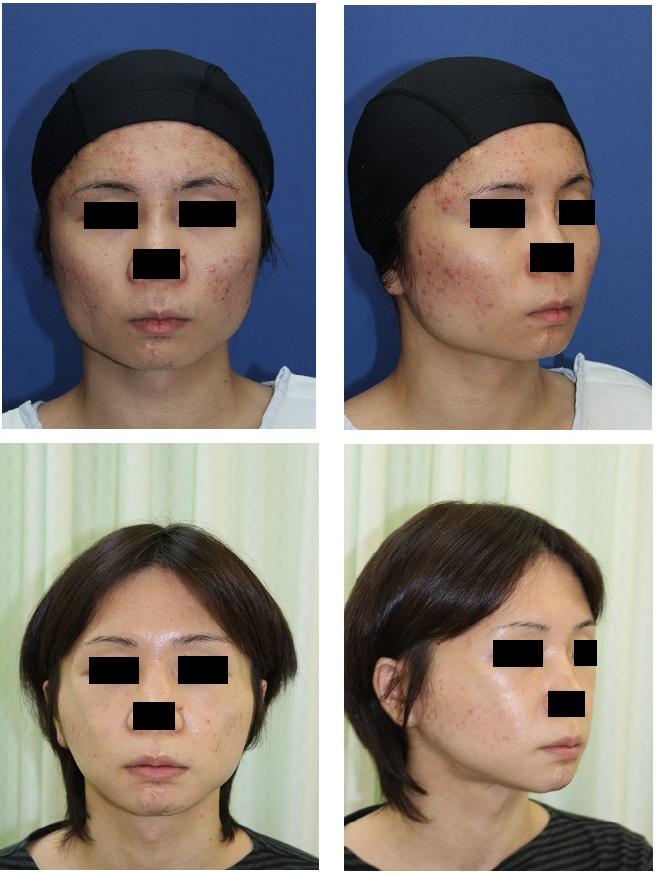 スティック骨切術、外板切除術、頬骨前方削り、アーチリダクション_d0092965_3281211.jpg