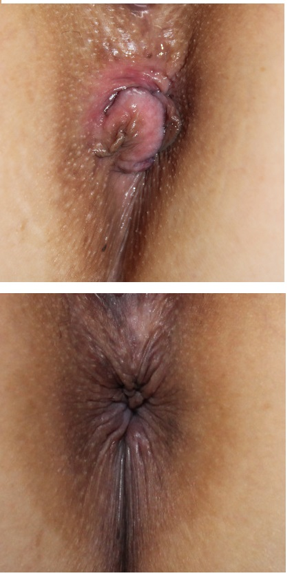 肛門美的形成術 術後約3か月_d0092965_464361.jpg