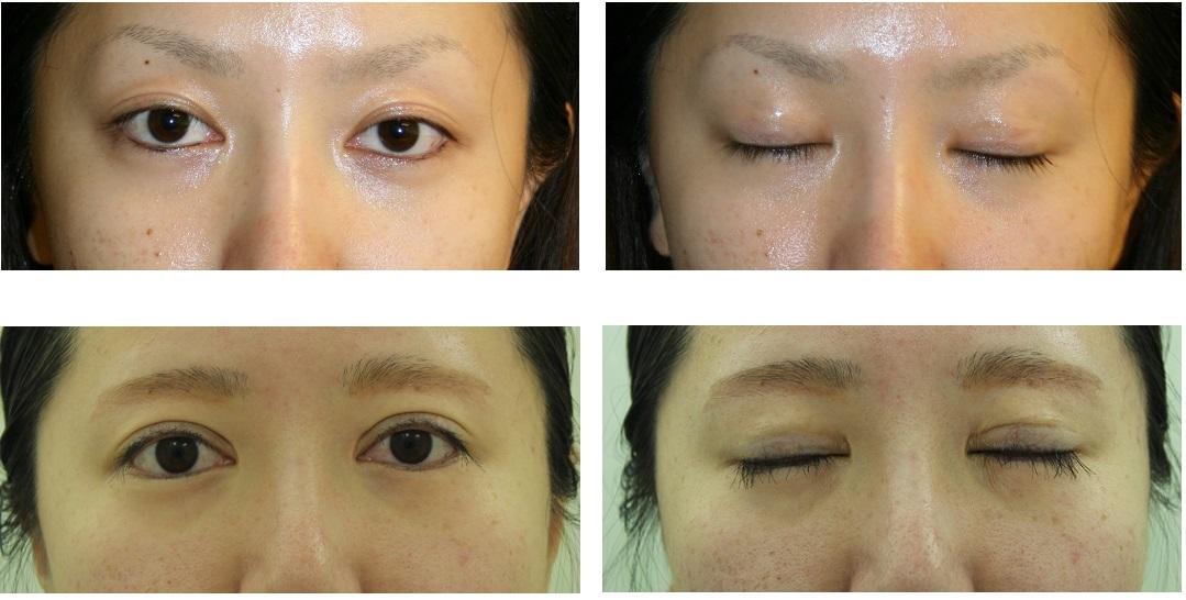 まつ毛植毛、たれ目形成、眼瞼下垂修正、 左三白眼修正 術後約4年_d0092965_19355659.jpg