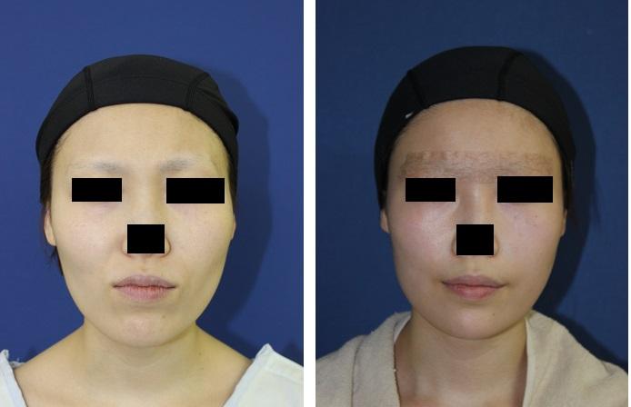 中顔面短縮術 : ルフォー (Le Fort) I 型骨切術 、下顎矢状分割術(SSM)_d0092965_22542350.jpg