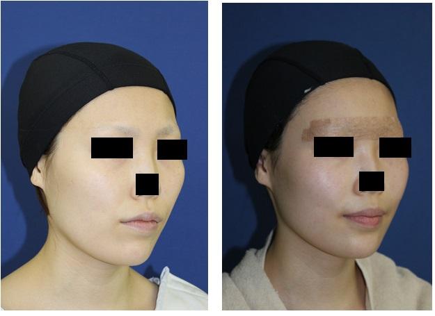 中顔面短縮術 : ルフォー (Le Fort) I 型骨切術 、下顎矢状分割術(SSM)_d0092965_2255825.jpg