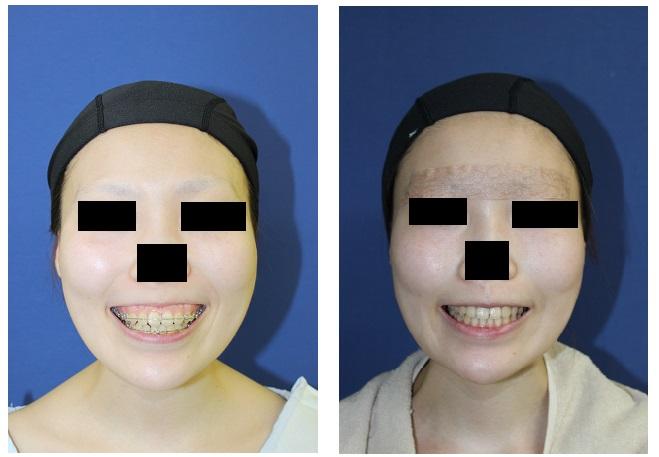 中顔面短縮術 : ルフォー (Le Fort) I 型骨切術 、下顎矢状分割術(SSM)_d0092965_22593717.jpg