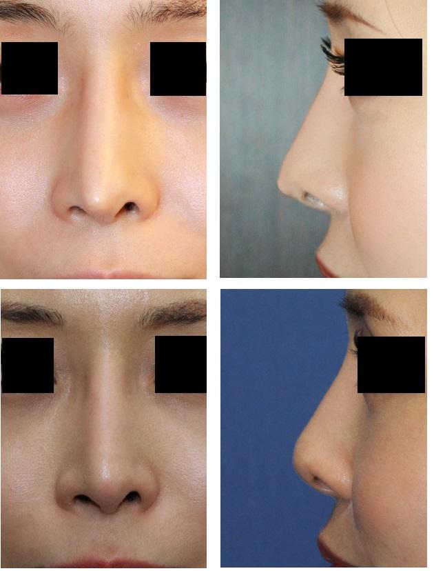 他院鼻尖部軟骨移植術術後  婦人科組織を用いての鼻先修正術術後約3年_d0092965_5121722.jpg