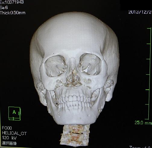 歯科医による美容外科手術_d0092965_481845.jpg