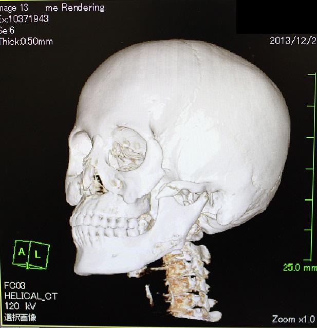 歯科医による美容外科手術_d0092965_48308.jpg