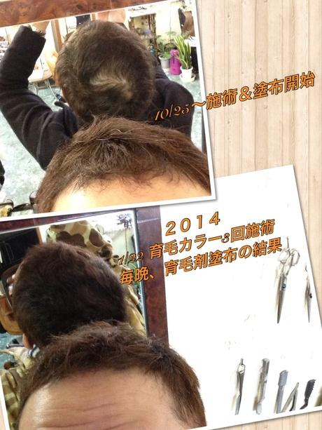 オリジナル育毛頭皮ケアカラー_c0232438_17292861.jpg