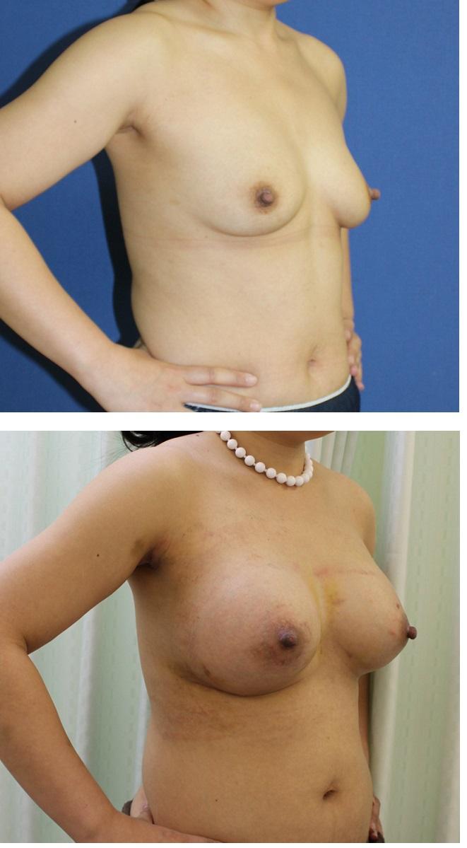 人工乳腺による乳房増大術(シリコンバック豊胸術)_d0092965_4161753.jpg