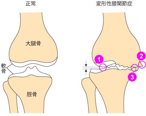 変形性膝関節症について~膝がどうなってしまう病気か説明しましょう_a0296269_11000877.jpg
