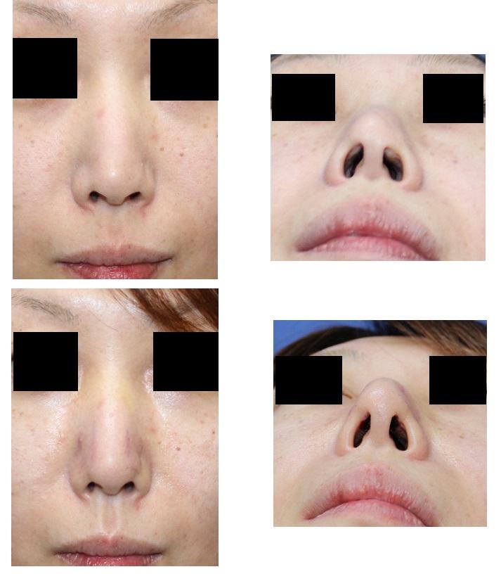 レーザー鼻尖縮小術 、鼻腔内キズ修正 術後約5日_d0092965_2243527.jpg
