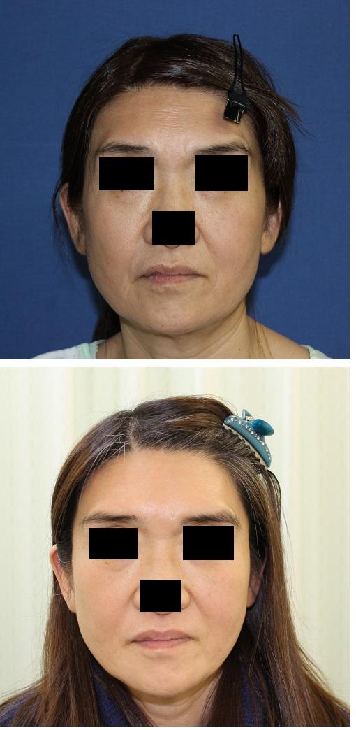 ミラクルリフト8本、アキュスカルプレーザー(顎下、頬下)、額ボツリヌス毒素注射、全顔レーザー治療_d0092965_173439.jpg