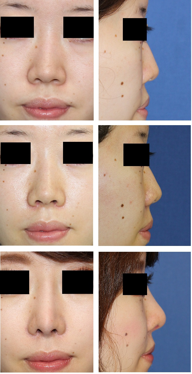 一期目 鼻口唇角形成術、鼻翼基部プロテーゼ、小鼻縮小_d0092965_318492.jpg