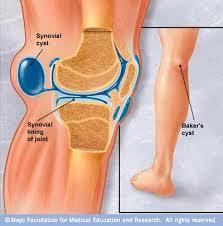 膝の痛み  -水がたまる-_e0326688_1644373.jpg
