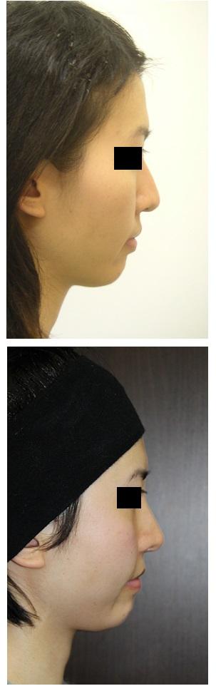 鼻翼基部プロテーゼ 術後約5年5か月再診時_d0092965_3155462.jpg
