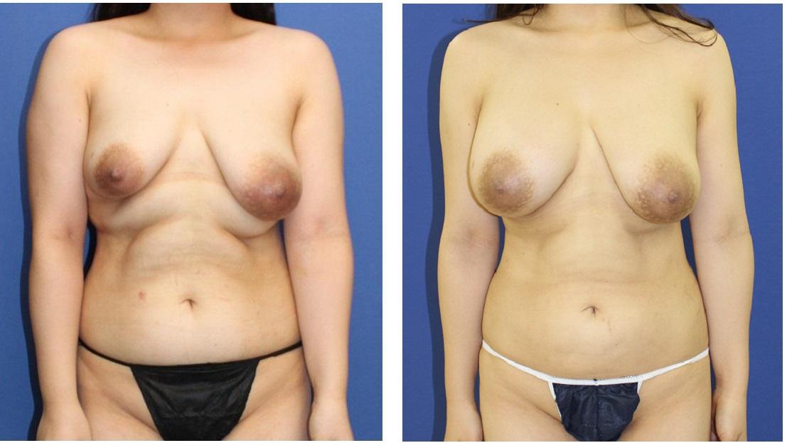 脂肪移植豊胸 3回目より術後約3か月    : メール問い合わせに対するご返信_d0092965_1171794.jpg