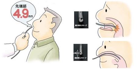 検査で悪化した鼻炎_e0097212_7561784.jpg