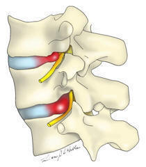 心までダメにしてしまう痛み ~30代女性 腰部椎間板ヘルニア~ 〇体の歪みを科学する整骨院〇_a0070928_23344902.jpg