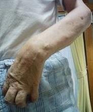 肩の手術で・・酷くなって_e0097212_19351669.jpg