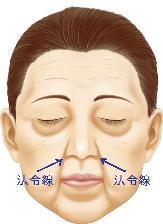 胃が悪い人は顔がたるみやすいので注意!_b0207632_22493369.jpg