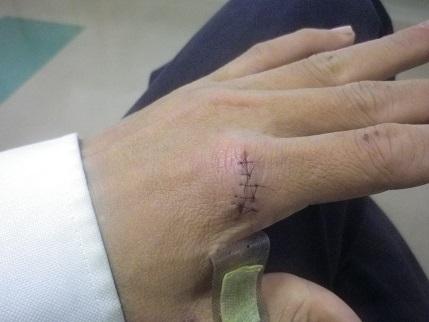 きのうは病院で抜糸で普通の手に戻りました?_a0139242_6234441.jpg