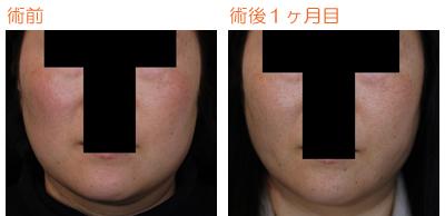 頬の脂肪吸引 術後1ヶ月目_c0193771_9133531.jpg