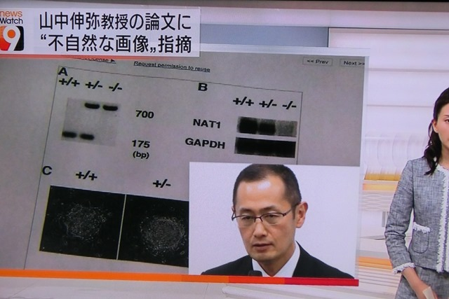 山中伸弥先生論文疑惑で謝罪山中先生謝罪の必要はありません、山中伸弥先生若い研究者に研究道を教えて_d0181492_053733.jpg