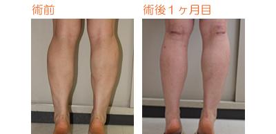 フクラハギを細くする手術(LDDN法) 術後1ヶ月目_c0193771_950645.jpg