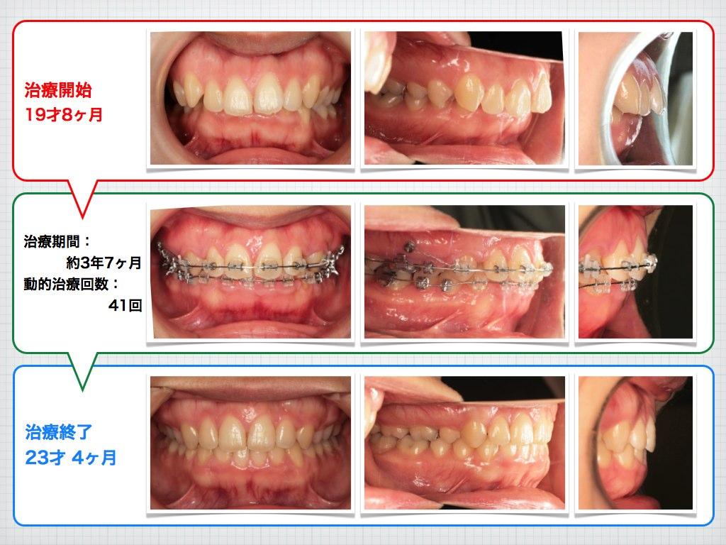 治療例:H・N さん 19才女性 出っ歯とガミースマイルの治療例_e0025661_635127.jpg
