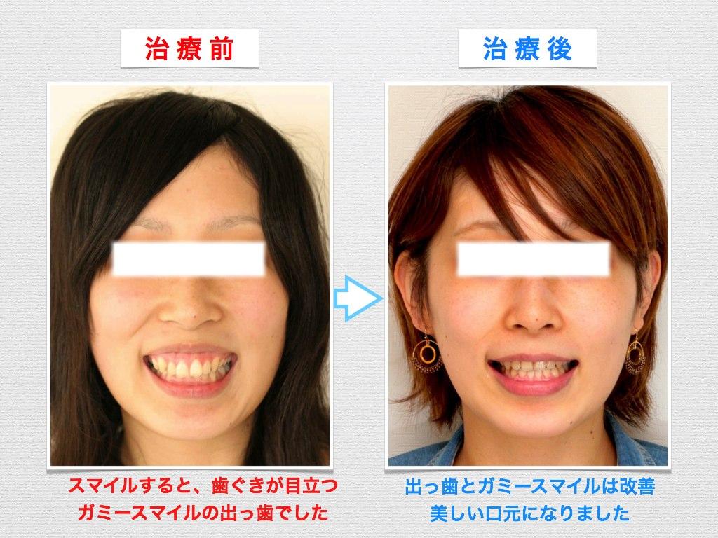 治療例:H・N さん 19才女性 出っ歯とガミースマイルの治療例_e0025661_6404599.jpg