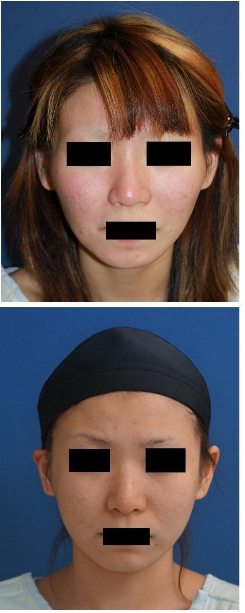 頬骨再構築法、鼻尖縮小術、鼻口唇角形成術、鼻プロテーゼ留置術、アキュスカルプレーザー_d0092965_017452.jpg
