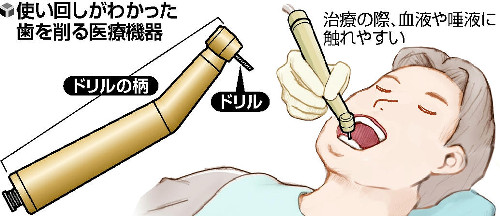 歯削る機器の滅菌について_a0263925_16182523.jpg