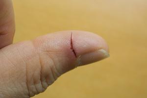 暗室作業も無事終了して、やっと都内に戻ってきた。指の怪我が未だ痛いです!_b0194208_23503022.jpg