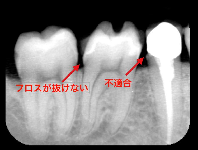 歯科医師の腕 治療後歯にフロスで挟まる取れない 東京職人歯医者_e0004468_19203675.png