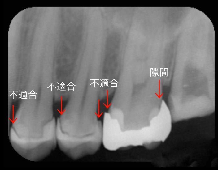 歯科医師の腕 治療後歯にフロスで挟まる取れない 東京職人歯医者_e0004468_20051586.png